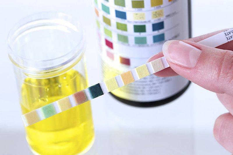 Nước tiểu ở những người khỏe mạnh sẽ có tính axit nhẹ với độ pH trong khoảng từ 4.8-8.5.