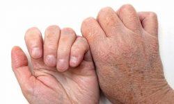 Khi bị lão hóa da trở nên thâm sạm, nhăn nheo và dễ bị nám, tàn nhang