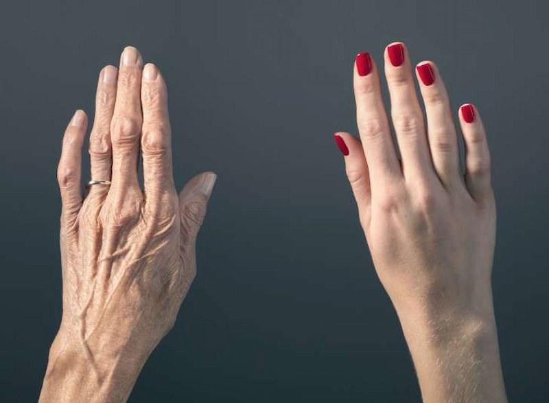 Hình ảnh daHình ảnh da tay bị lão hóa và chưa bị lão hóaa tay bị lão hóa và chua bị lão hóa