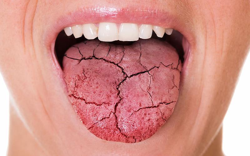 Tiết ít nước bọt gây khô miệng là nguyên nhân làm gia tăng bệnh lý nha khoa