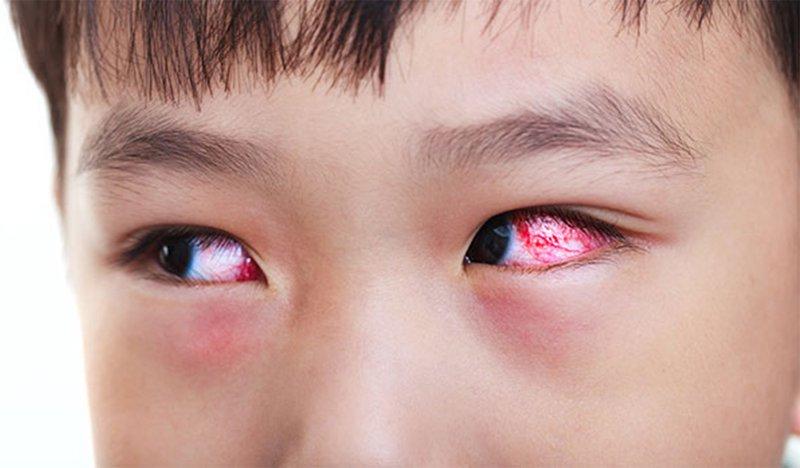 Bệnh võng mạc tiểu đường có nguy cơ dẫn đến mù lòa cao