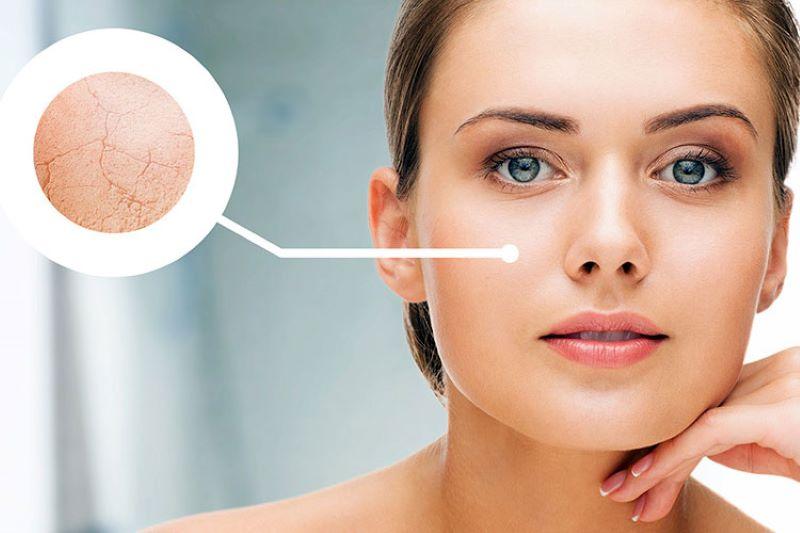 Nước cứng vĩnh cứu có thể khiến làn da của bạn trở nên khô nứt, thiếu sức sống